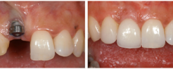 implant_crowns_13